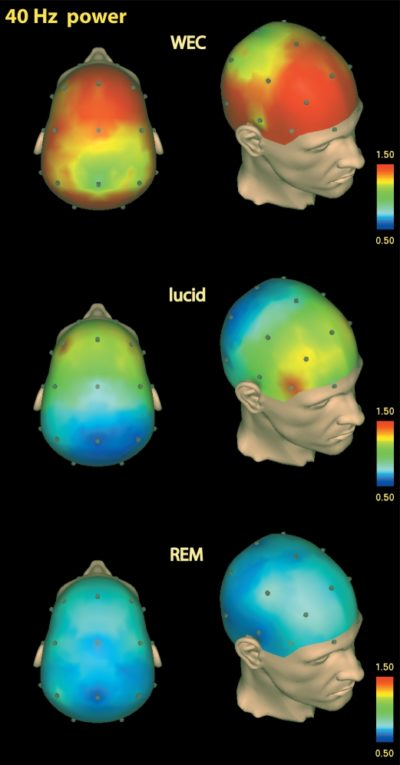 So can zapping the brain really induce lucid dreams? | dream